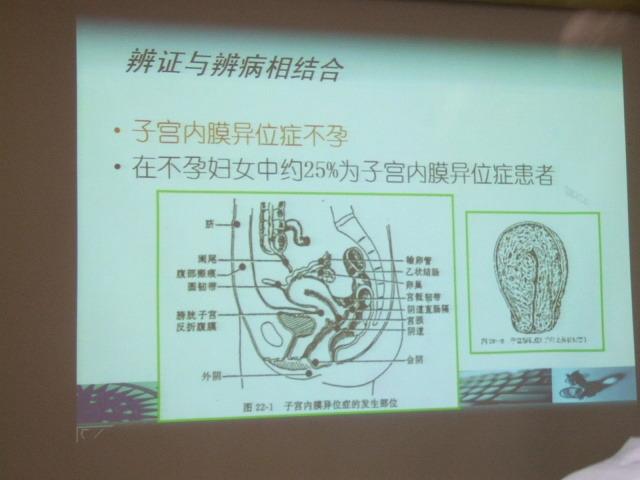 子宮内膜症のスライド